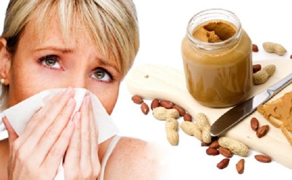 Alergia pokarmowa objawy